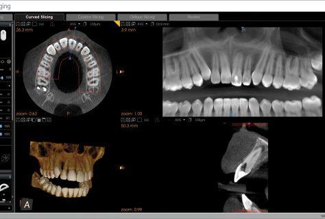 Zahnbehandlung im Ausland, zahnersatz aus ungarn