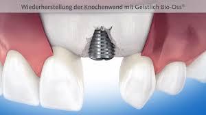 Implantatmarke