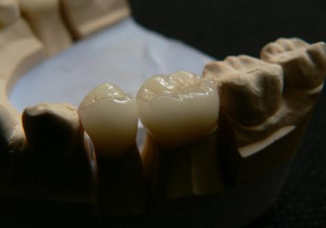 Zahnbehandlug